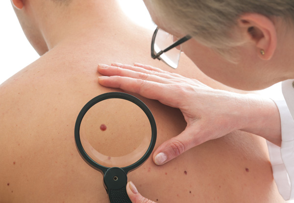 Fort Wayne Dermatology offers screening services and treatments for many types of skin cancers.