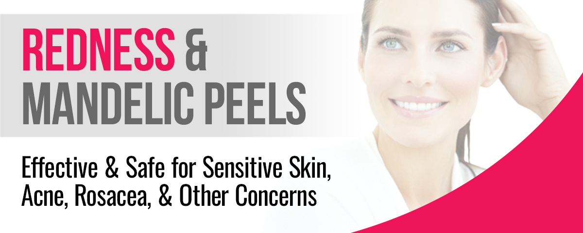 Redness & Mandelic peels