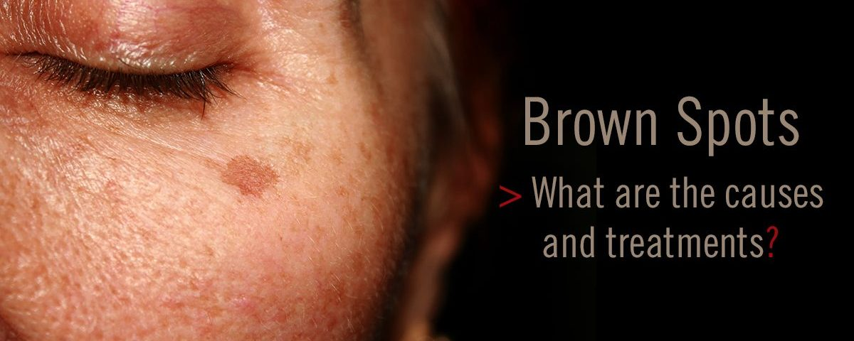 Brown Spots - What are the causes and treatments?