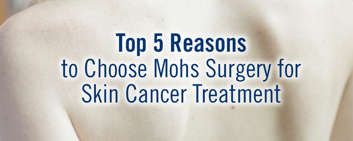 Top 5 Reasons to Choose Mohs Surgery for Skin Cancer Treatment